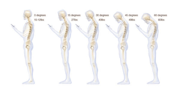 smartphone-texting-pressure-on-neck