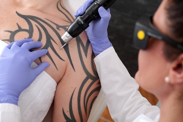 tatuajes-laser